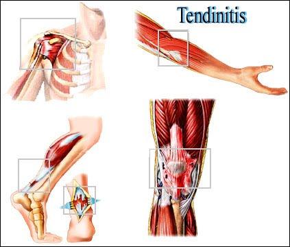 Tendinitis and Tenosynovitis